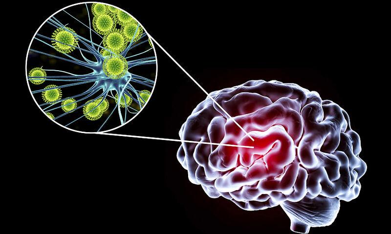 Κορωνοϊός: Βλάβη στον εγκέφαλο αφήνουν ακόμη και ήπιες περιπτώσεις